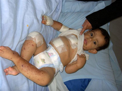 Wounded Baby Lebanon 420